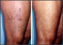 leggs with veins